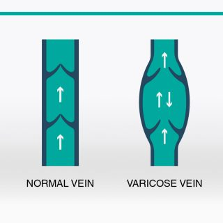 varicose veins infographics